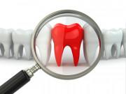 Trotz Erbkrankheit hohe Zuzahlungskosten für Zahnersatz
